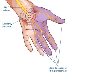 Syndrome du canal carpien : quoi faire pour éviter la ...